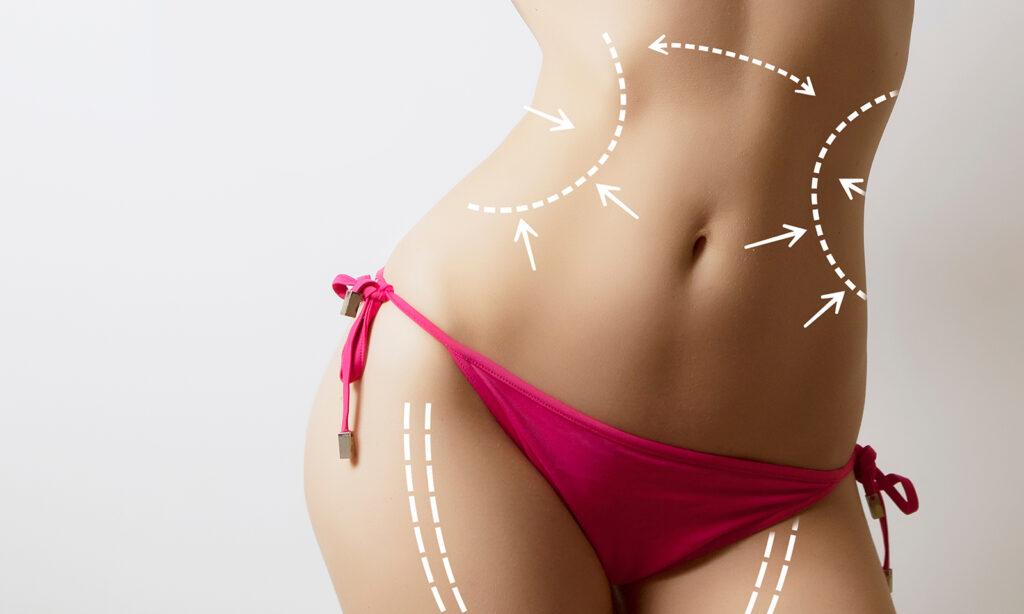 bikini-body-weight-loss-no-body-hair-woman-in-bikini