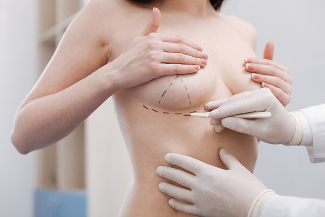 How-To-Prepare-For-A-Breast-Augmentation-Procedure-woman-getting-marked-for-augmentation