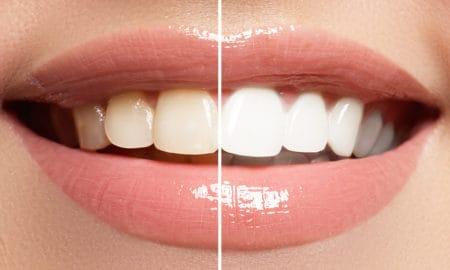 reasons-why-you-may-need-a-dentists-help-main-image