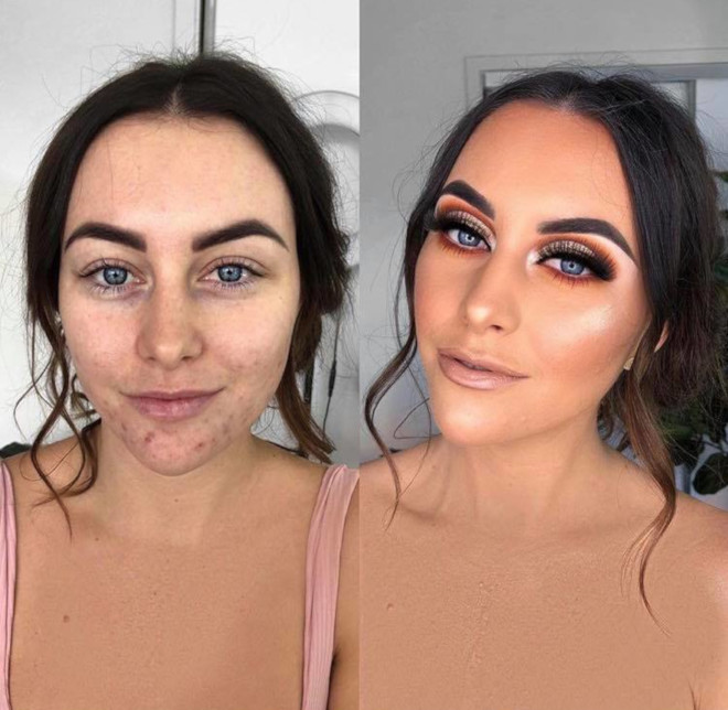 acne coverage beauty transformations 2