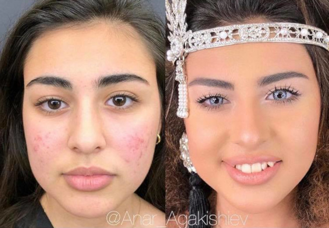 acne coverage beauty transformations 3