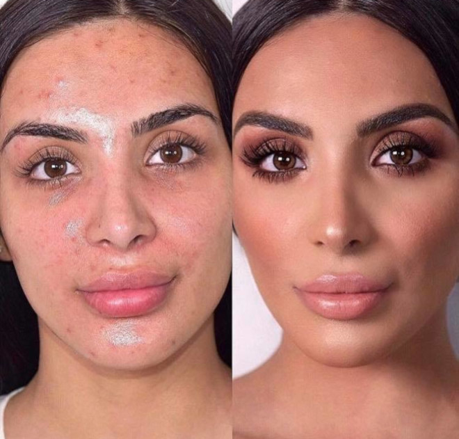 acne coverage beauty transformations 7
