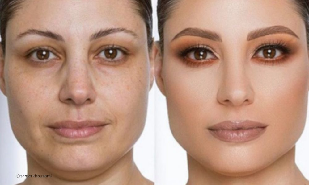 beauty-transformations-by-samer-khouzami-1-1-1000×600-2