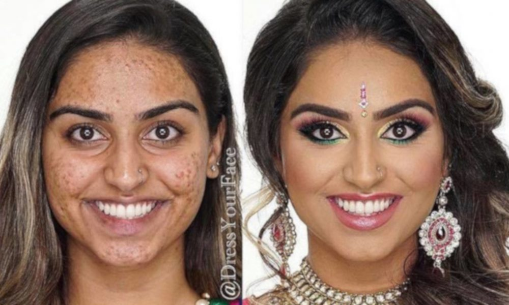 acne-coverage-beauty-transformations-1-1-1000×600-1