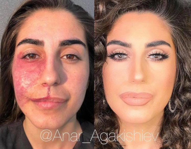 beauty transformations severe skin conditions power of makeup 6