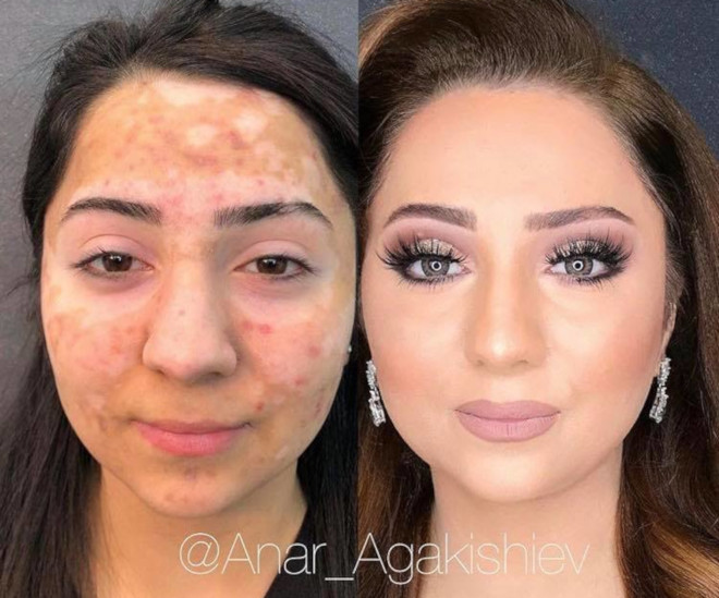 beauty transformations severe skin conditions power of makeup 7