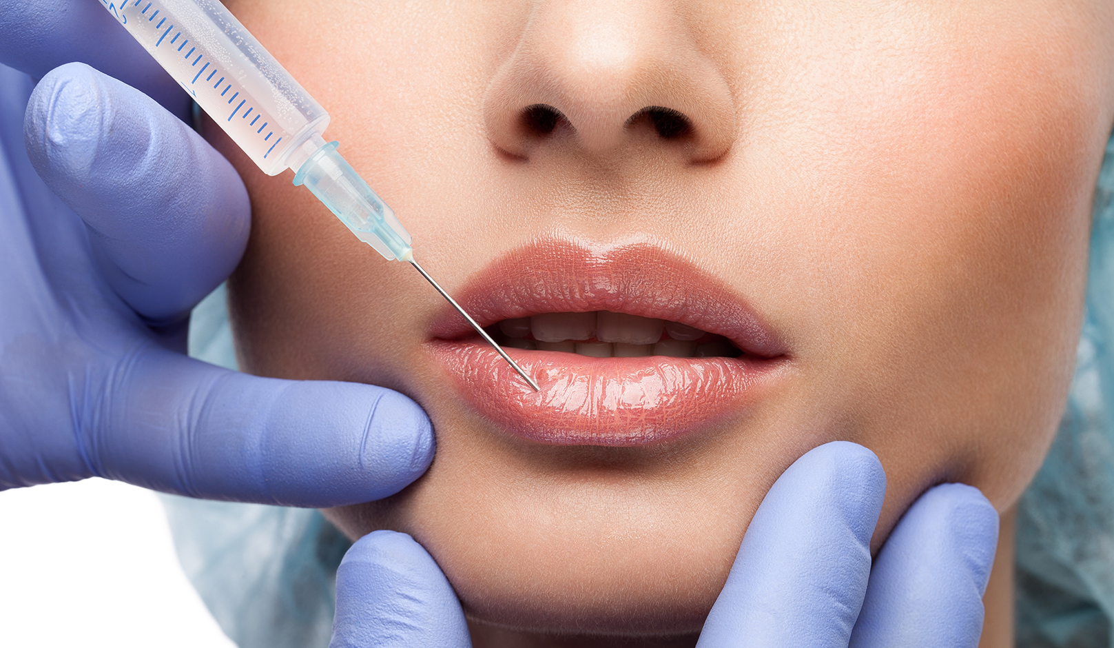 pros-and-cons-of-lip-filler-woman-getting-injection